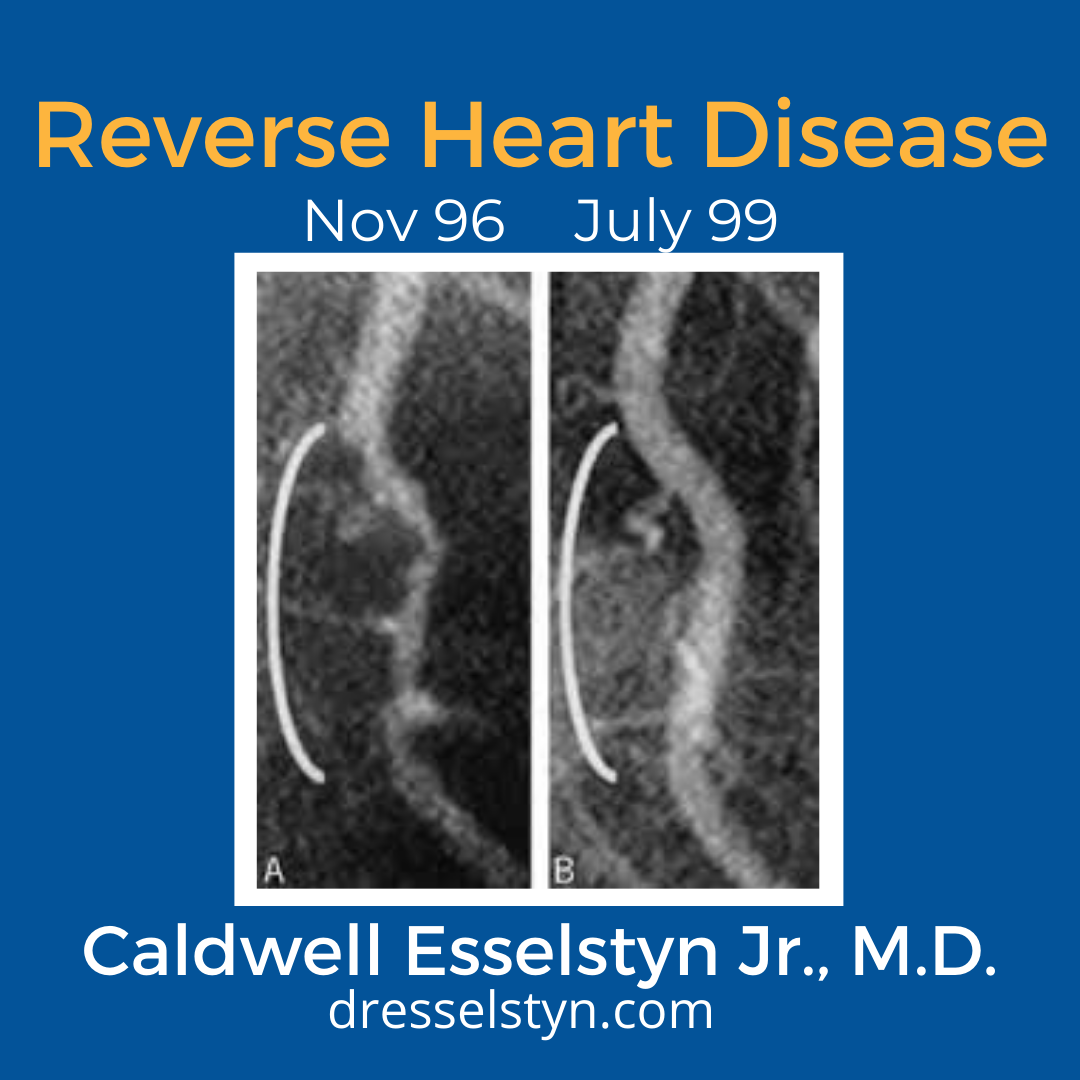 Photo taken by Dr. Caldwell Esselstyn Jr., M.D. of a before and after images of heart catheterization x rays from 1996 to 1999 showing improved coronary blood flow and proving heart disease reversal with a plant based diet